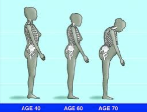Progression of Osteoporosis